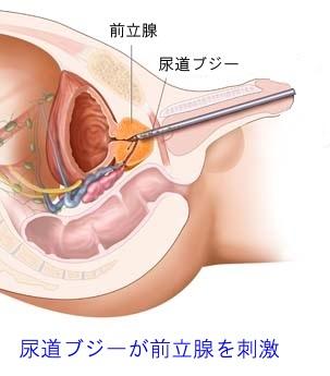 尿道ブジーが前立腺までたどり着いた状態の図