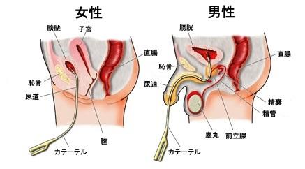 尿道カテーテルを挿入した男女の図