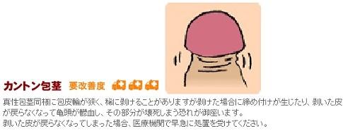 カントン包茎の図