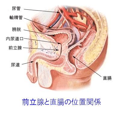 前立腺と直腸の位置関係を示した図